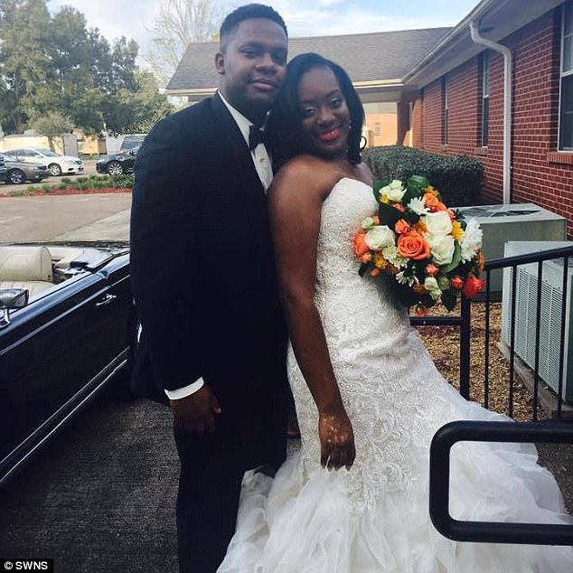 American bride to-be in tears as skin infection appears on her body -dailyfamily.ng