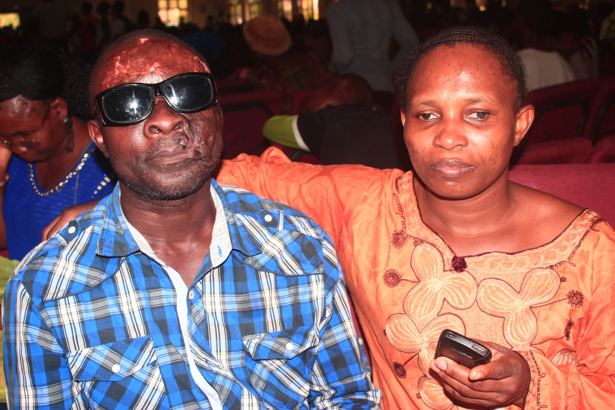 Touching! Couple shares how they lost their sights.dailyfamily.ng