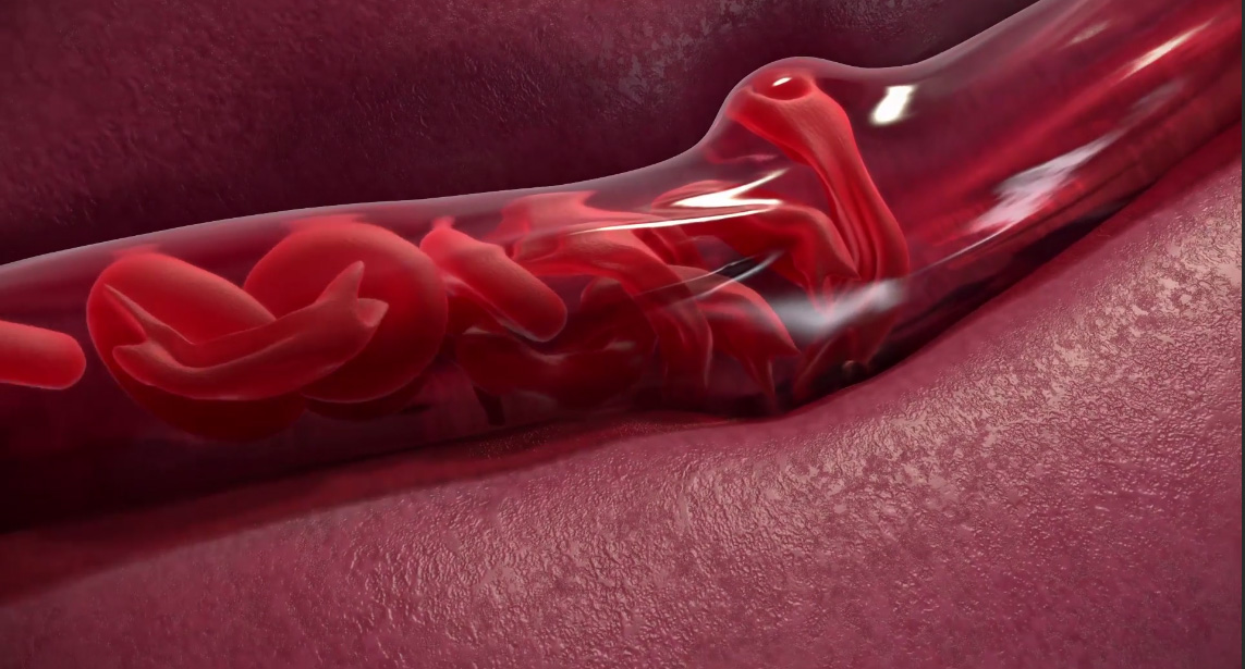 See How to Manage Sickle-cell-dailyfamily.ng