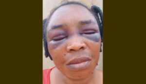 Married Woman, Father and Brother Beaten Over 'Igbo' (Photo)