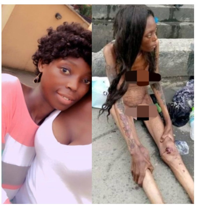 Update: Ajah Lady Looks Amazing Few Weeks Later-dailyfamily.ng